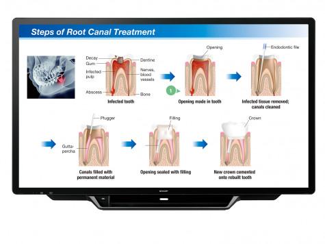 PN-70TH5_dental_treatment